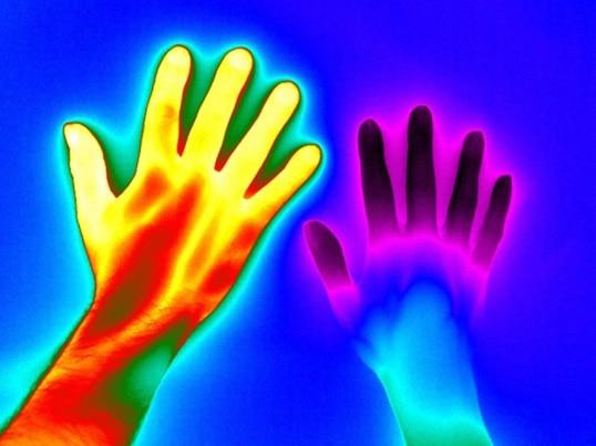 Mano sana (a sinistra) e mano di una persona affetta da sindrome di Reynaud (destra)