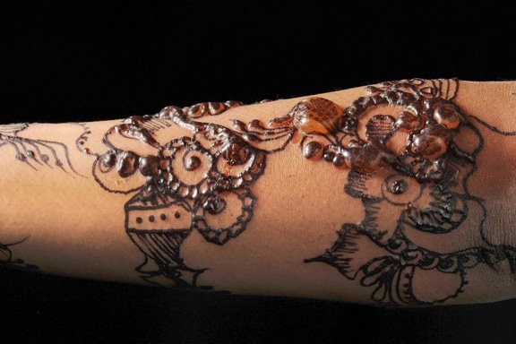 Reazione allergica henné