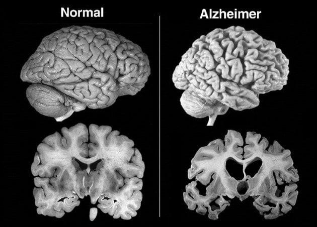 Normal vs Alzheimer