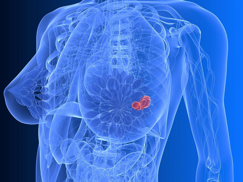 Una nuova speranza contro il cancro al seno?