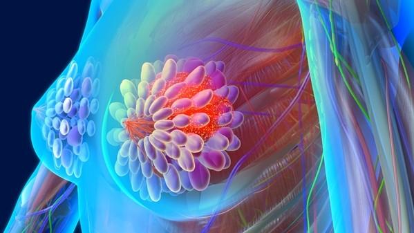 Scoperta proteina che arresta il tumore mammario