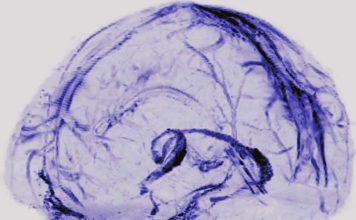 Sistema linfatico - cervello