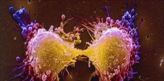 Cancro, possibili nuove strategie per affamare le cellule tumorali