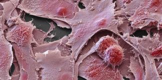 cancerseek rivela otto tipi di tumore